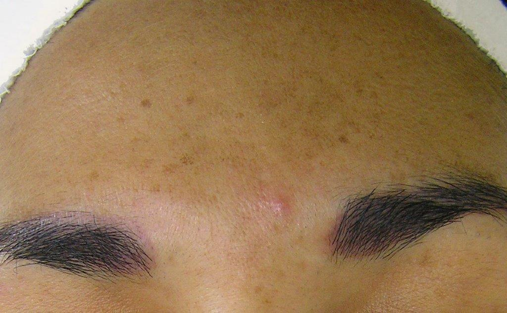 Sun Damage Acne Before