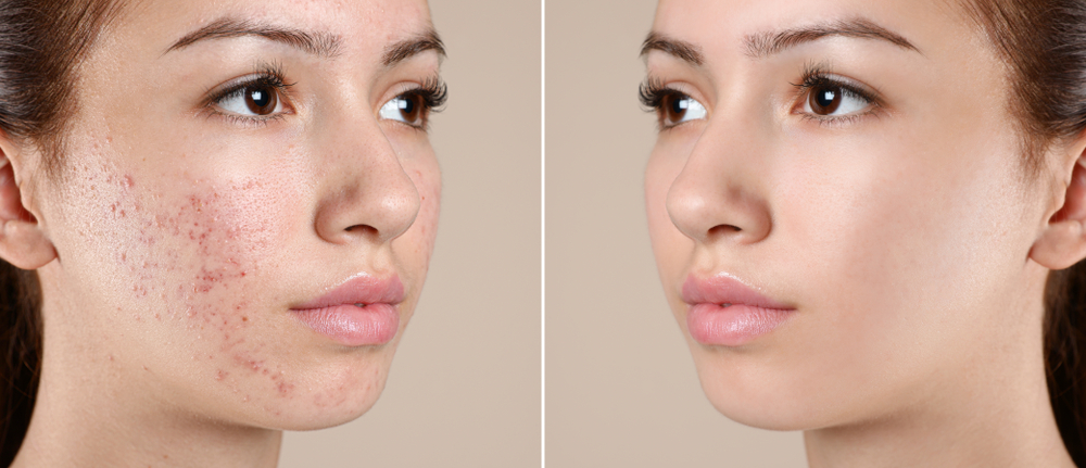 Best Acne Facial in Columbia, Maryland
